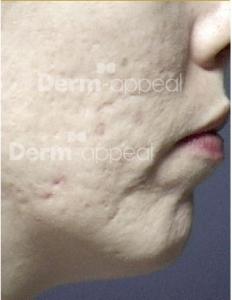 Microderm acne litekens na_watermerk