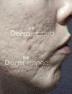 Microderm acne litekens voor_watermerk