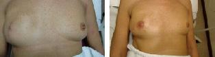 medische-tatoeage-11